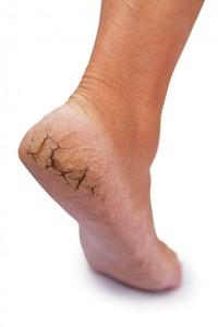 As rachaduras, calosidades e frieiras nos pés podem gerar a erisipela, uma infecção grave e de difícil controle.